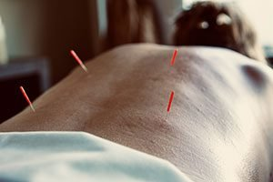 Services - Avida Center Acupuncture Corp. - San Diego